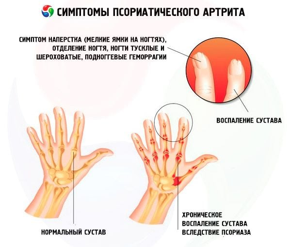 Изображение - Как проявляется артрит суставов psoriaticheskiy-artrit-simptomy-b