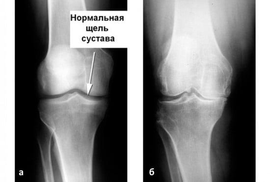 Остеоартроз коленного сустава 2 степени – лечение эффективными методами