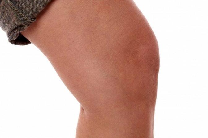 Что такое синовит коленного сустава