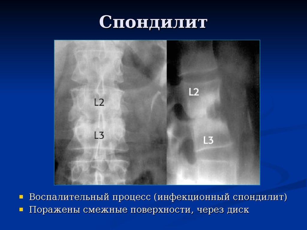 Изображение - Как проявляется артрит суставов spondilit