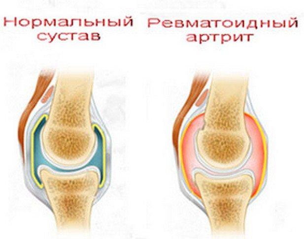 Почему болят суставы рук