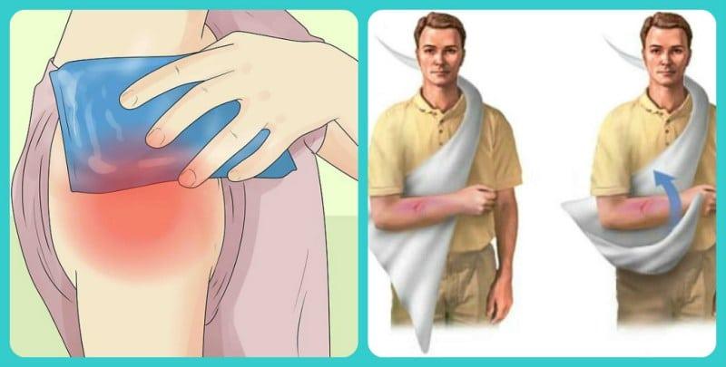 Вывих плеча на рентгене