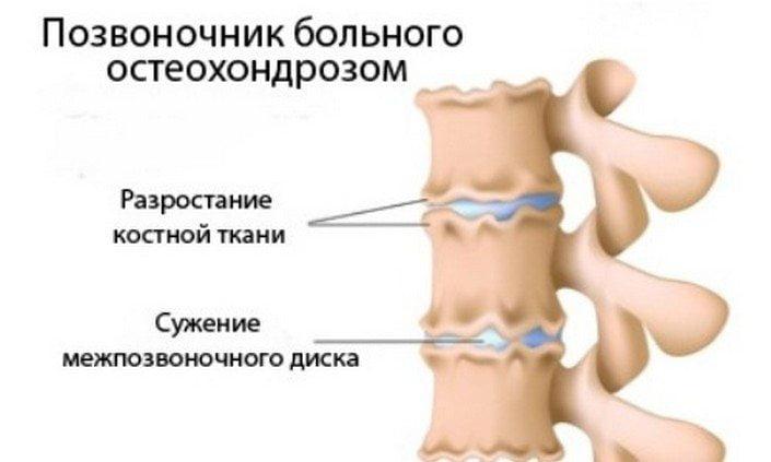 zarjadka-pri-shejnom-osteohondroze-v-domashnih-uslovijah