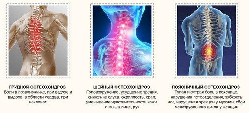 hondroprotektory-preparaty-pri-osteohondroze