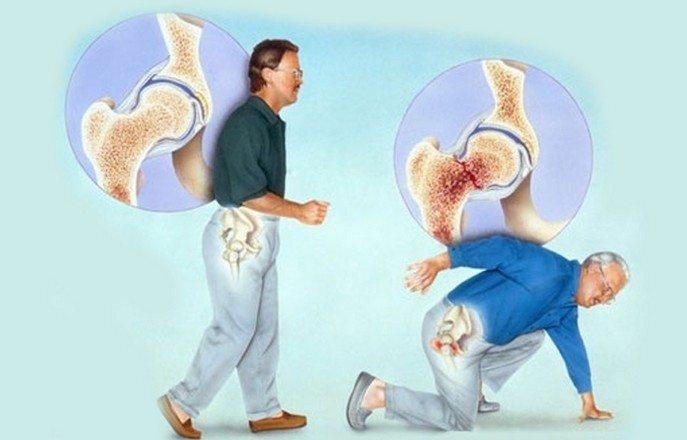 Перелом кости при остеопорозе