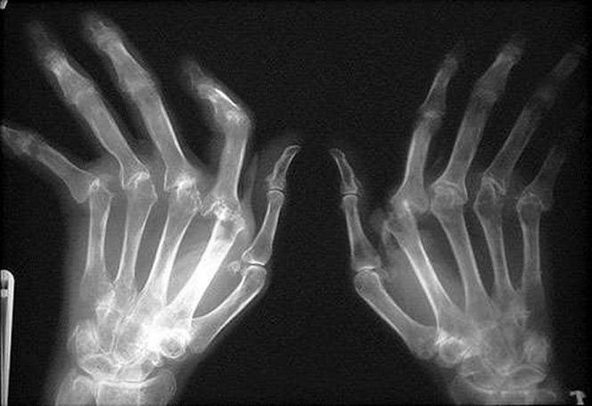 Рентген при ревматоидном артрите