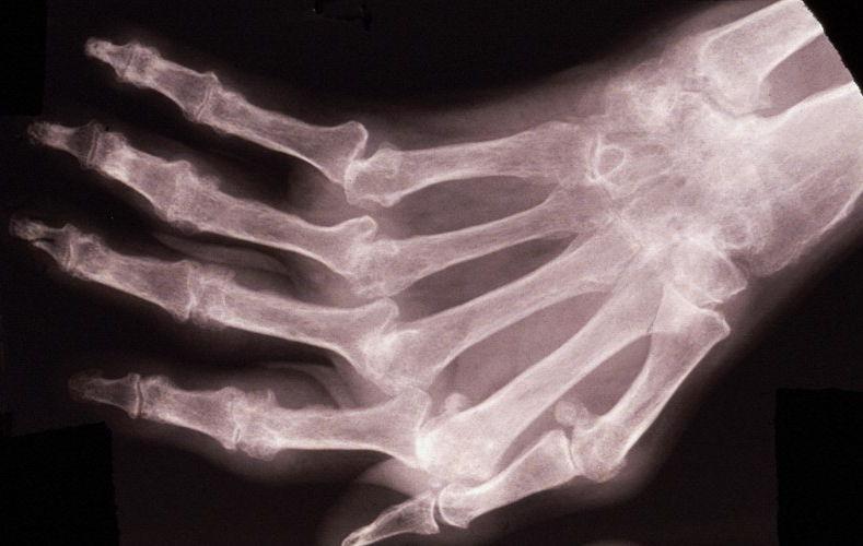 Особенности лечения артроза кистей рук в домашних условиях