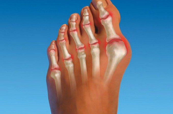 Деформация пальцев ноги