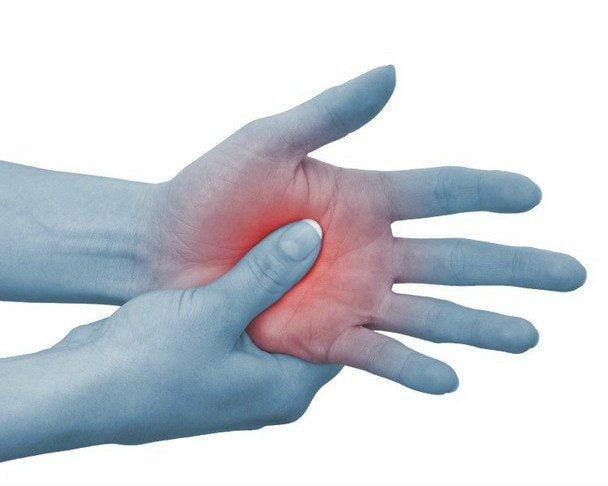 Артроз суставов кисти руки лечение