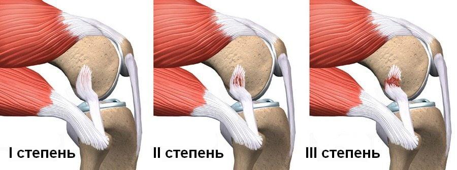 Степени растяжения связок колена