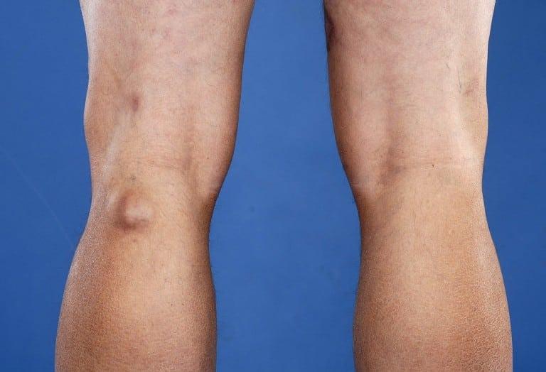 Киста Бехтерева в коленном суставе лечение