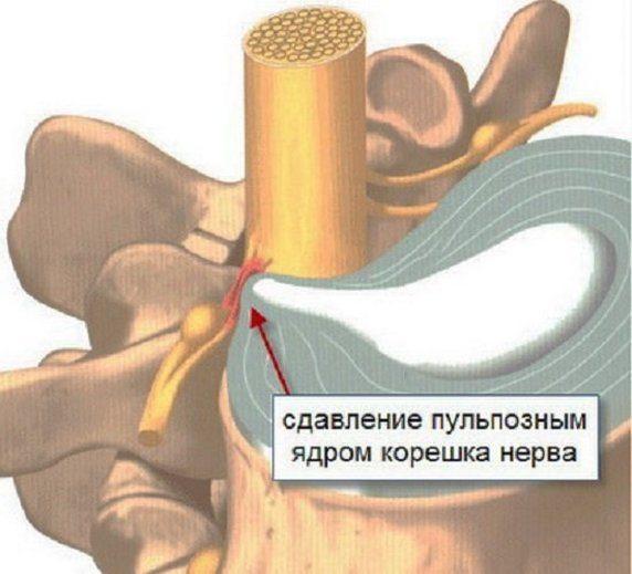 Как болит грудной остеохондроз у женщин — Сайт о лечении заболеваний суставов