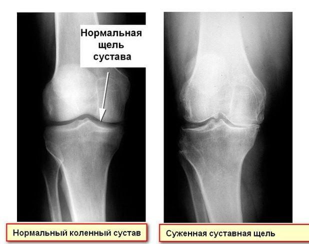 Суженная суставная щель колена