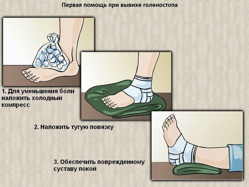 Первая помощь при вывихе голеностопа