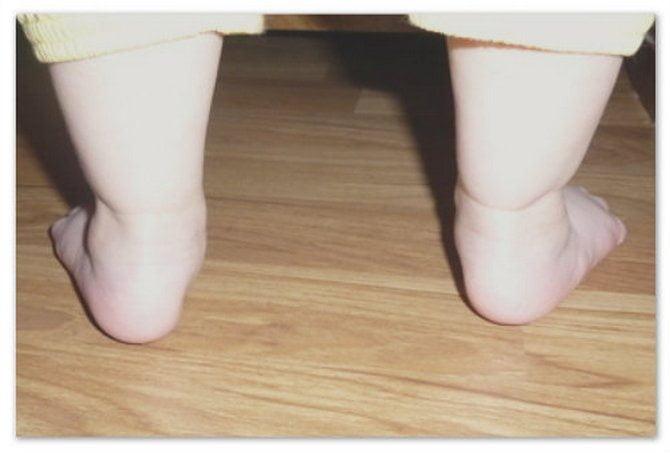 Плоская стопа у ребенка