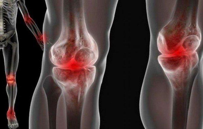 Боли при реактивном артрите
