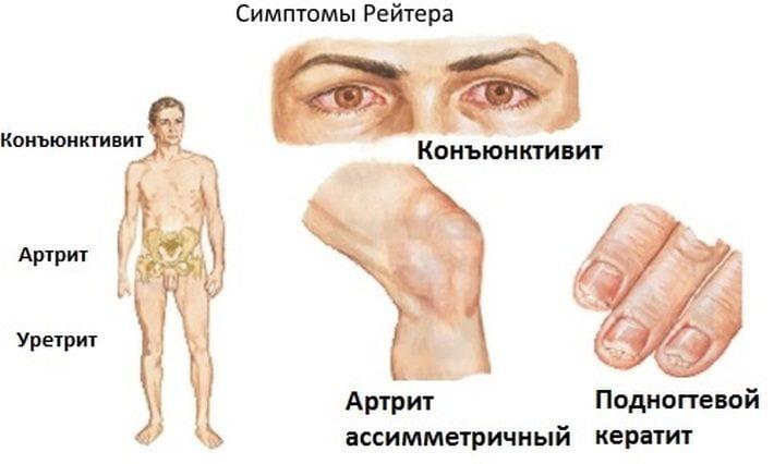 Симптомы болезни Рейтера