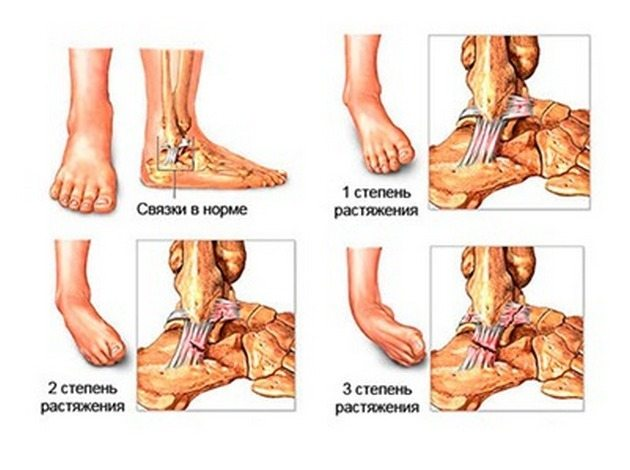 Вывих голеностопного сустава