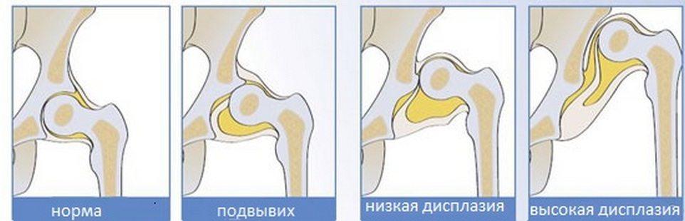 Изображение - Почему у месячного ребенка хрустят суставы xrustyat-sustavy-u-rebenka
