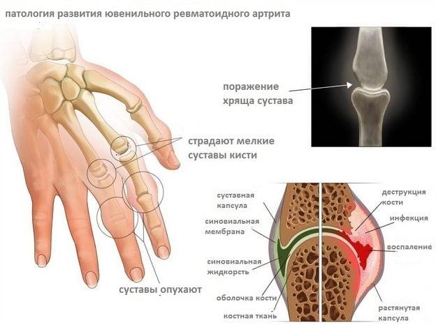 Развитие ювенильного ревматоидного полиартрита