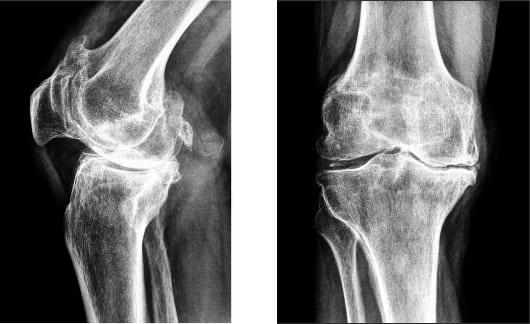 Причины боли в коленях и советы по их лечению