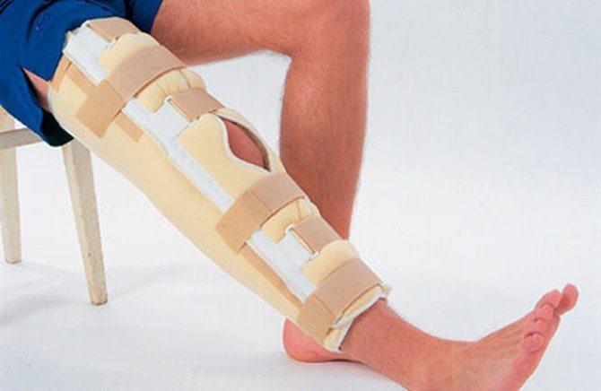 Коленный бандаж после травмы