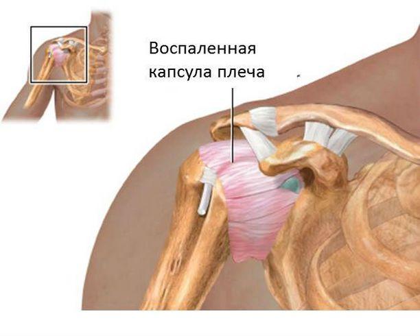 Капсулит плеча