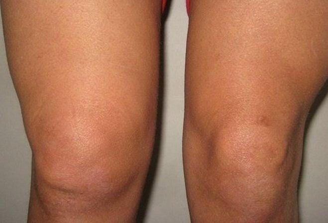 Изображение - Что делать при ушибе коленного сустава chem-lechit-ushib-kolena-v-domashnix-usloviyax