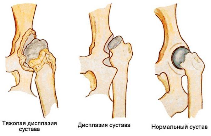 Лечение дисплазии тазобедренных суставов после 4 месяцев