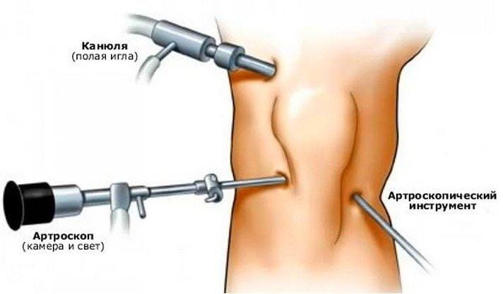 Изображение - Всегда нужна операция при гонартрозе коленных суставов chto-takoe-gonartroz
