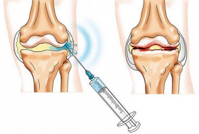 Лечение суставов гиалуроном