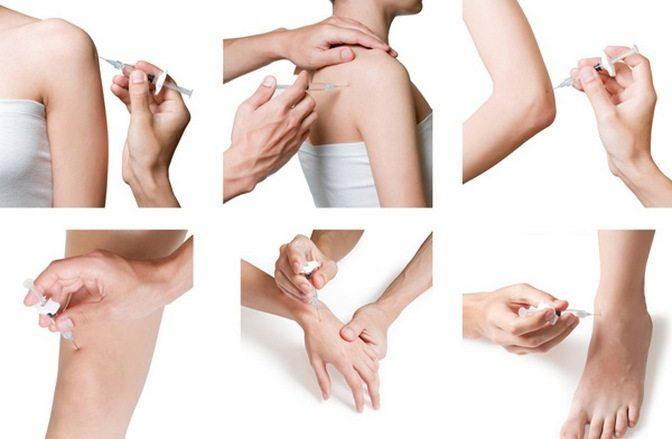 Восстановление суставов с помощью протеза Гиалуром