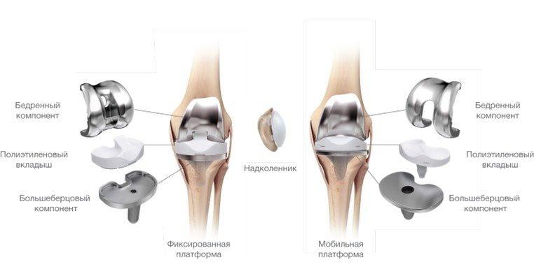 Изображение - Варусный гонартроз коленного сустава gonartroz-eto