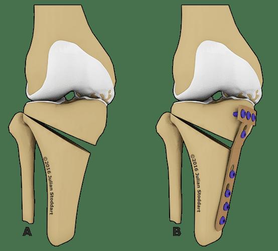 Изображение - Варусный гонартроз коленного сустава hod-operacii