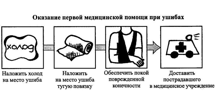 Изображение - Что делать при ушибе коленного сустава kak-lechit-v-domashnix-usloviyax-ushib-kolena