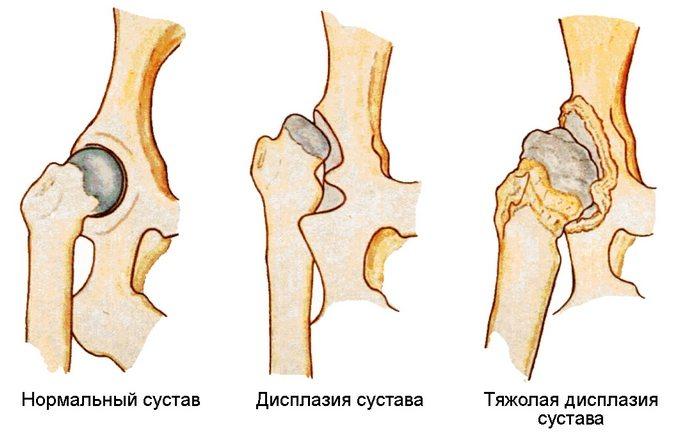 Изображение - Температура при коксартрозе тазобедренного сустава koksartroz-tazobedrennogo-sustava-lechenie