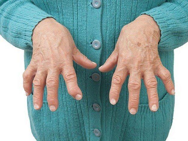Ревматоидный полиартрит пальцев рук