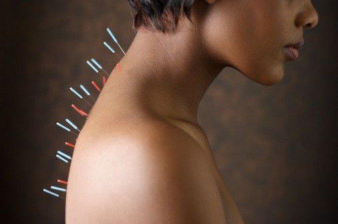 Иглоукалывание шейно-грудного отдела