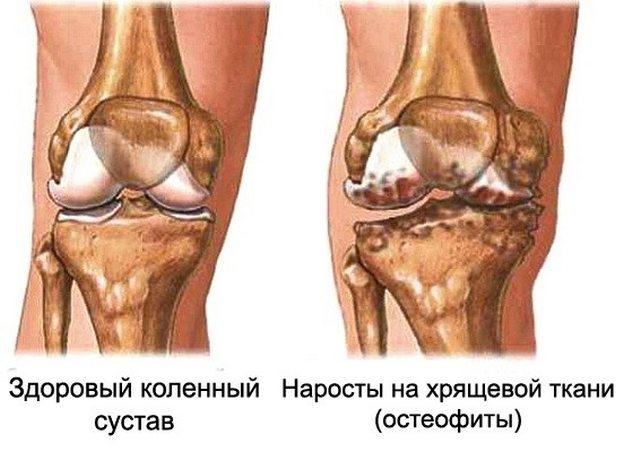 Остеофиты на коленном суставе