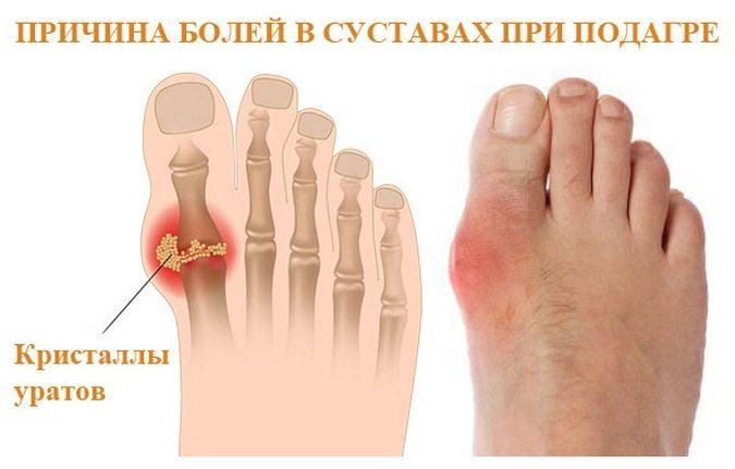 Подагра на ногах : причины, симптомы, диагностика, лечение