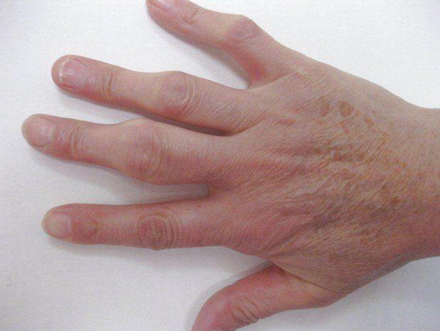 Кисть пораженная полиартритом