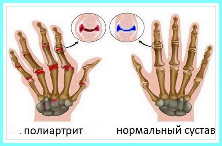 Полиартрит пальцев рук