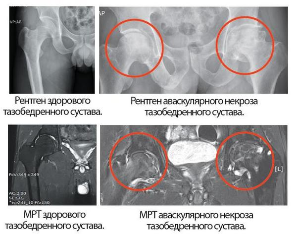 МРТ и Рентген аваскулярного некроза ТБС
