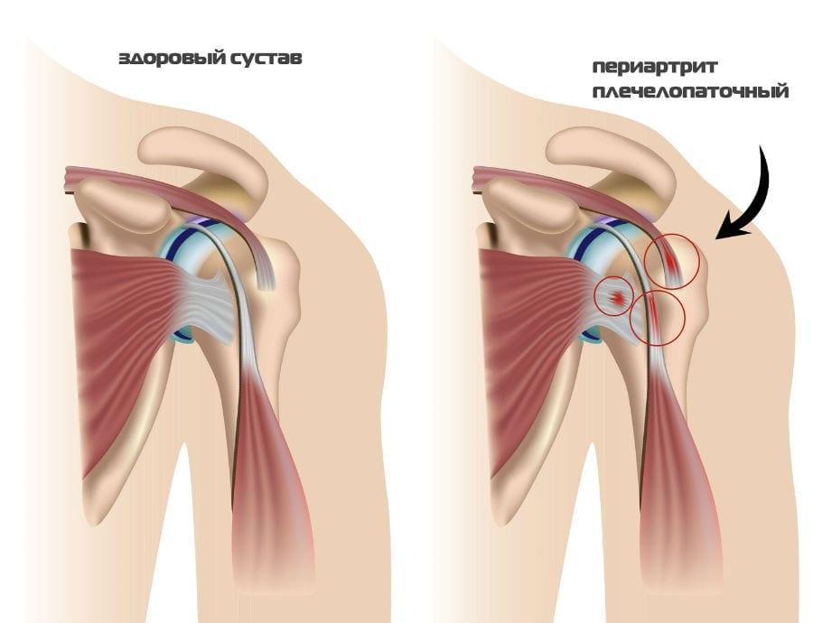 Упражнения комплекса Попова при плечелопаточном периартрите обзор