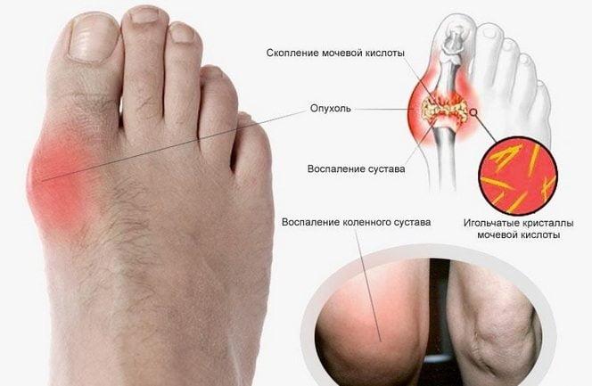 Скопление мочевой кислоты в пальцах стопы