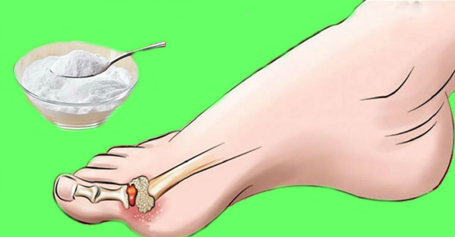Препарат колхицин эффективное средство при подагре