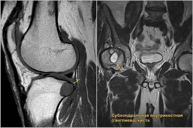 Киста бейкера коленного сустава причины симптомы лечение заболевания