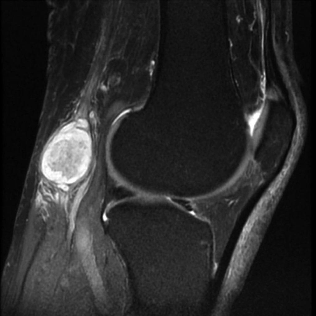 Киста в коленном суставе лечение