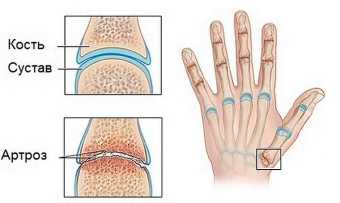 Полиартроз большого пальца руки
