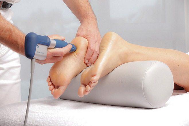 Ударно-волновая терапия для пятки